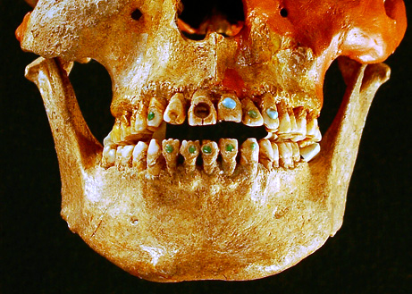 jeweled teeth picture big Top 10 Nat Geo Discoveries of 2009